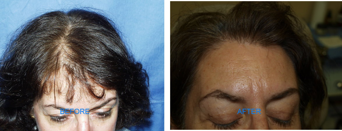 Follicular Unit Hair Transplant (Before & After)
