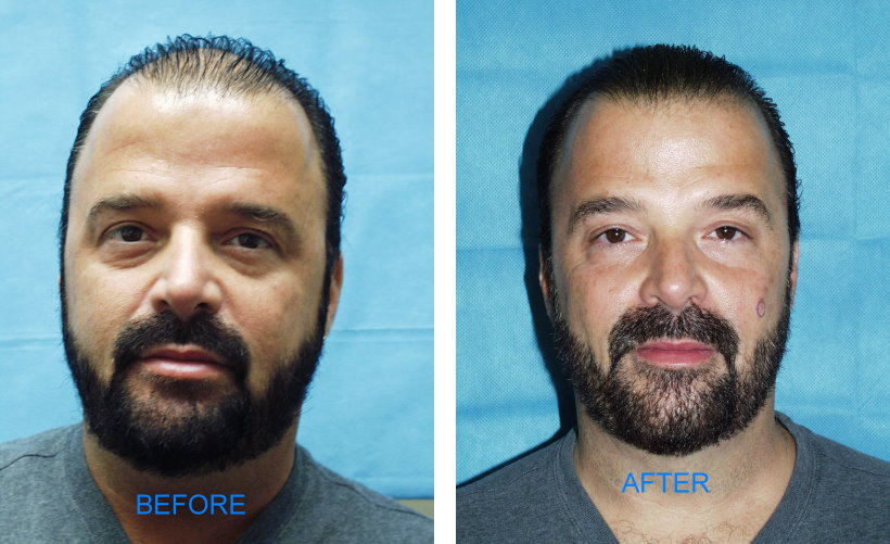 Follicular Unit Hair Transplants (Before & After)