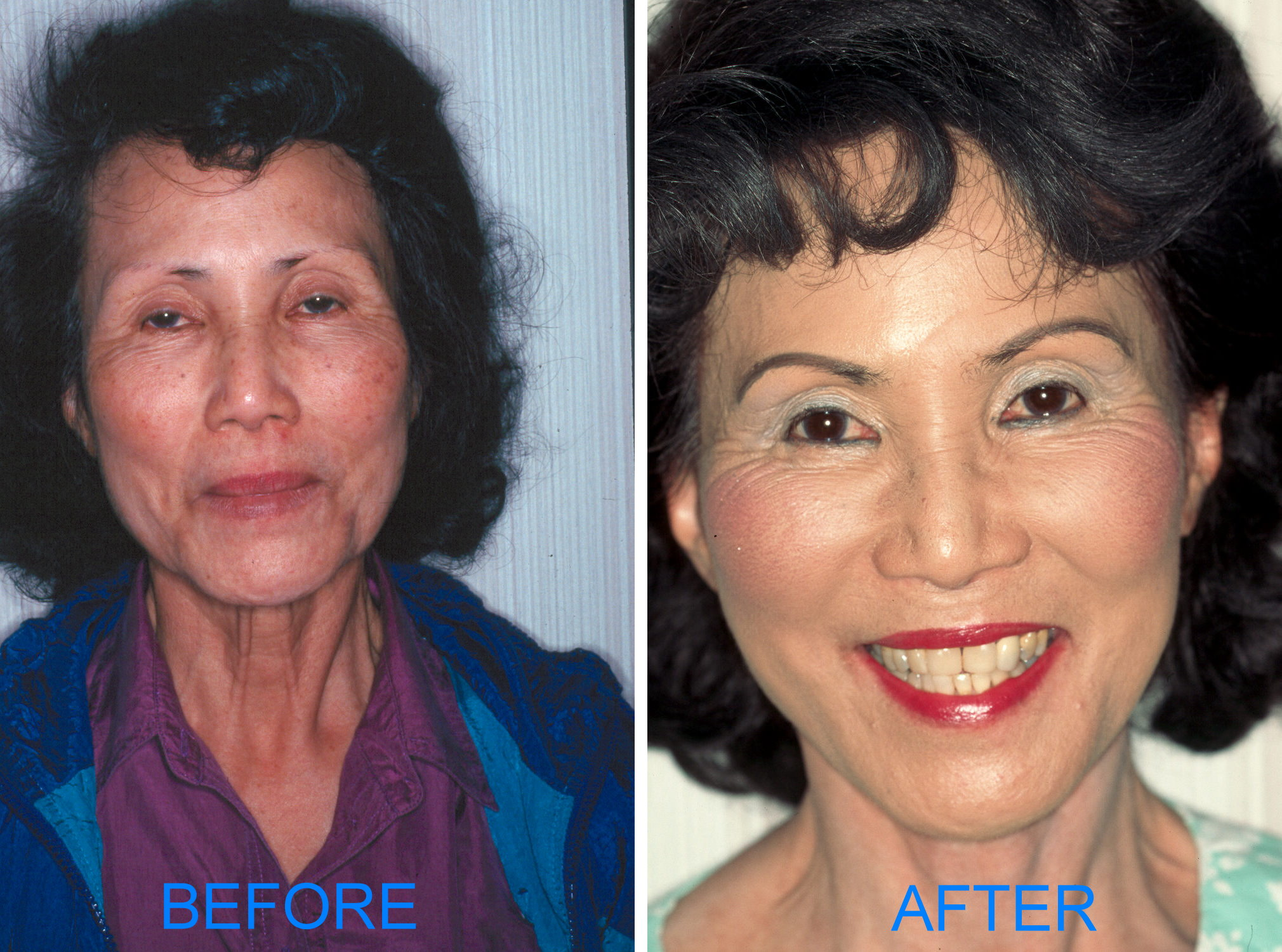 Facelift (Before & After) Frontal