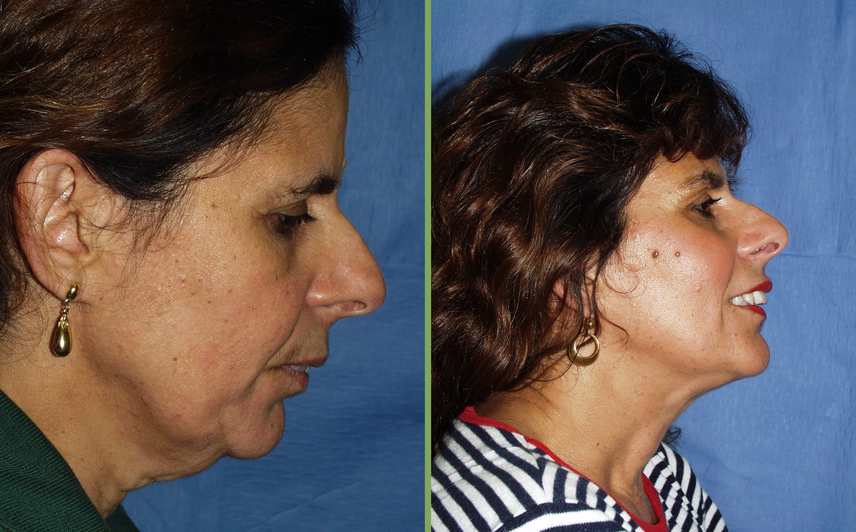 Neck Liposuction (Before & After)