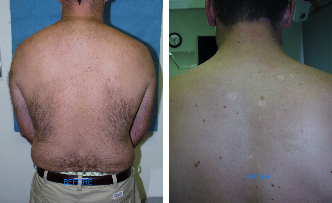 IPL Hair Removal(Before & After)