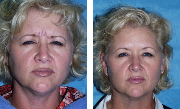 Botox ( to glabellar frown lines) Before and @ 6d
