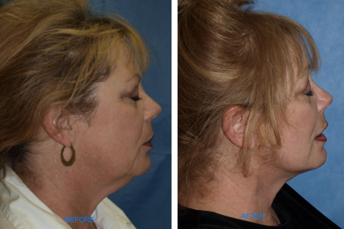S-Lift (Before & After, Lateral)